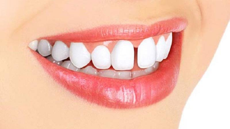 بهترین دندانپزشک اصفهان بستن فضای بین دندان ها