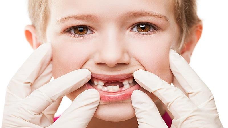 بهترین دندانپزشک اصفهان کشیدن دندان شیری کودکان