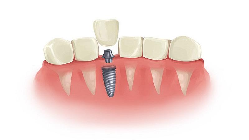 بهترین دندانپزشک اصفهان احساس می کنید ایمپلنت از جایش در آمده؛ چه باید کرد؟