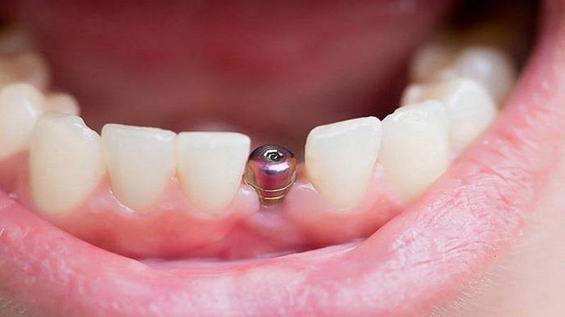 بهترین دندانپزشک اصفهان لق شدن تاج دندان ایمپلنت