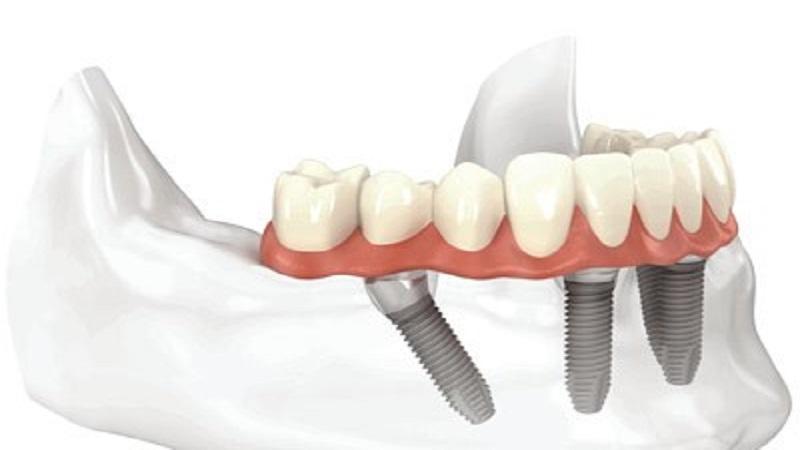 بهترین دندانپزشک اصفهان چرا نباید به ایمپلنت لق شده ضربه وارد شود؟