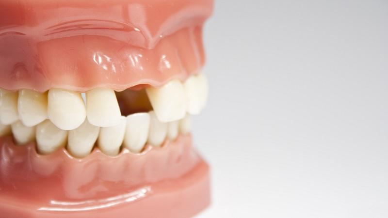 بهترین دندانپزشک اصفهان کاشت دندان به چند روش انجام می شود ؟