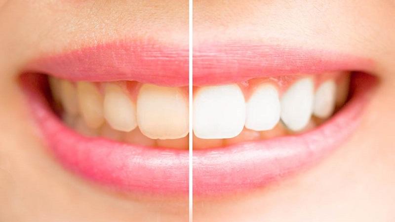 بهترین دندانپزشک اصفهان بلیچینگ دندان