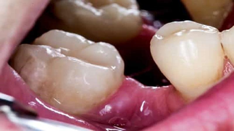 عوارض از دست دادن دندان ها
