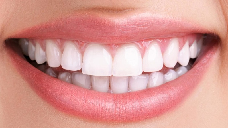 روش های اصلاح طرح لبخند