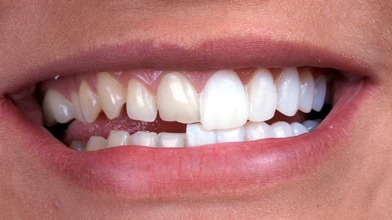 لامینت (ونیر) دندان
