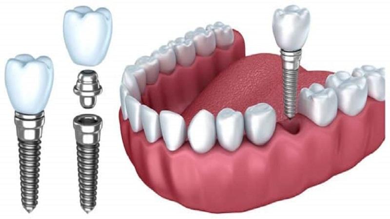 کاشت ایمپلنت دندان اصفهان
