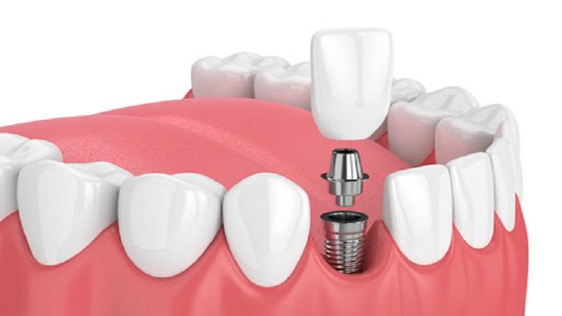 چند نکته مهم در مورد ایمپلنت های دندانی